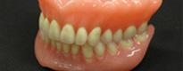 入れ歯(義歯)の作成